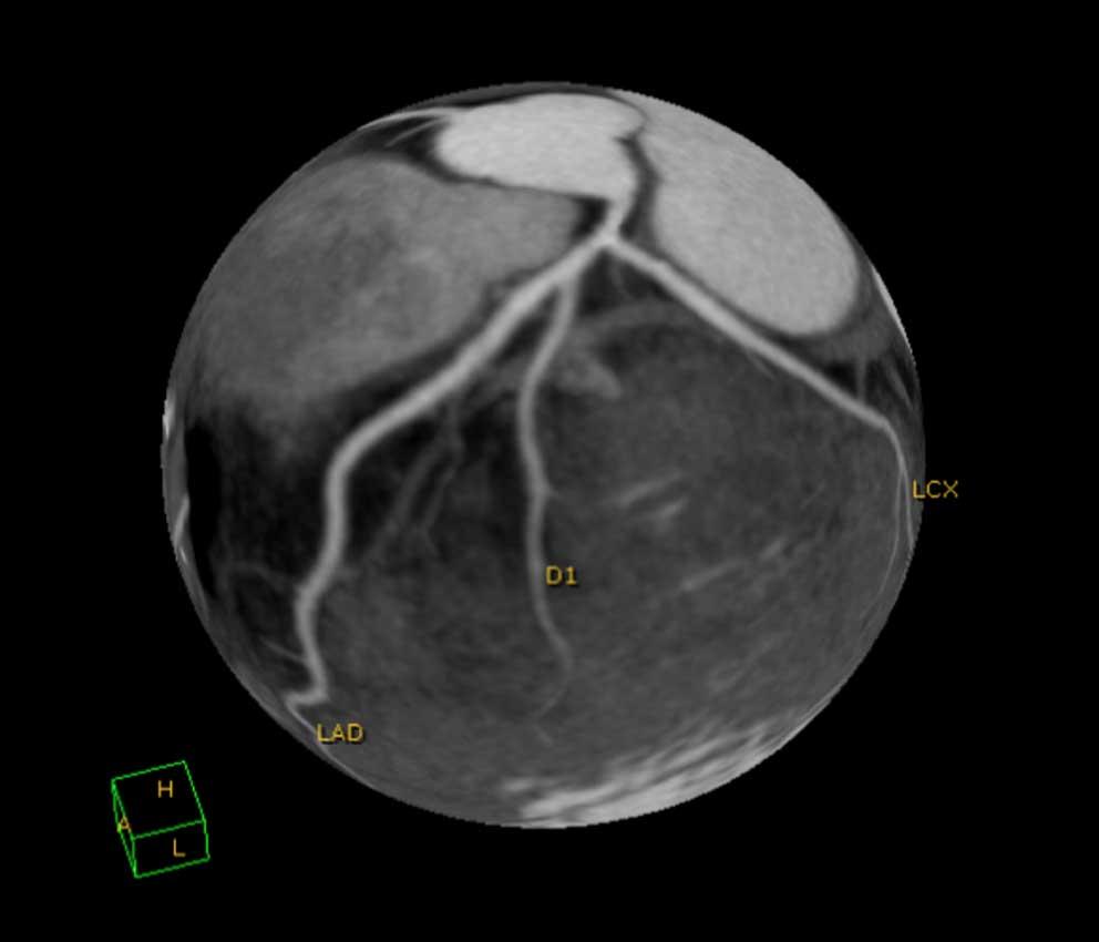 Kardio CT