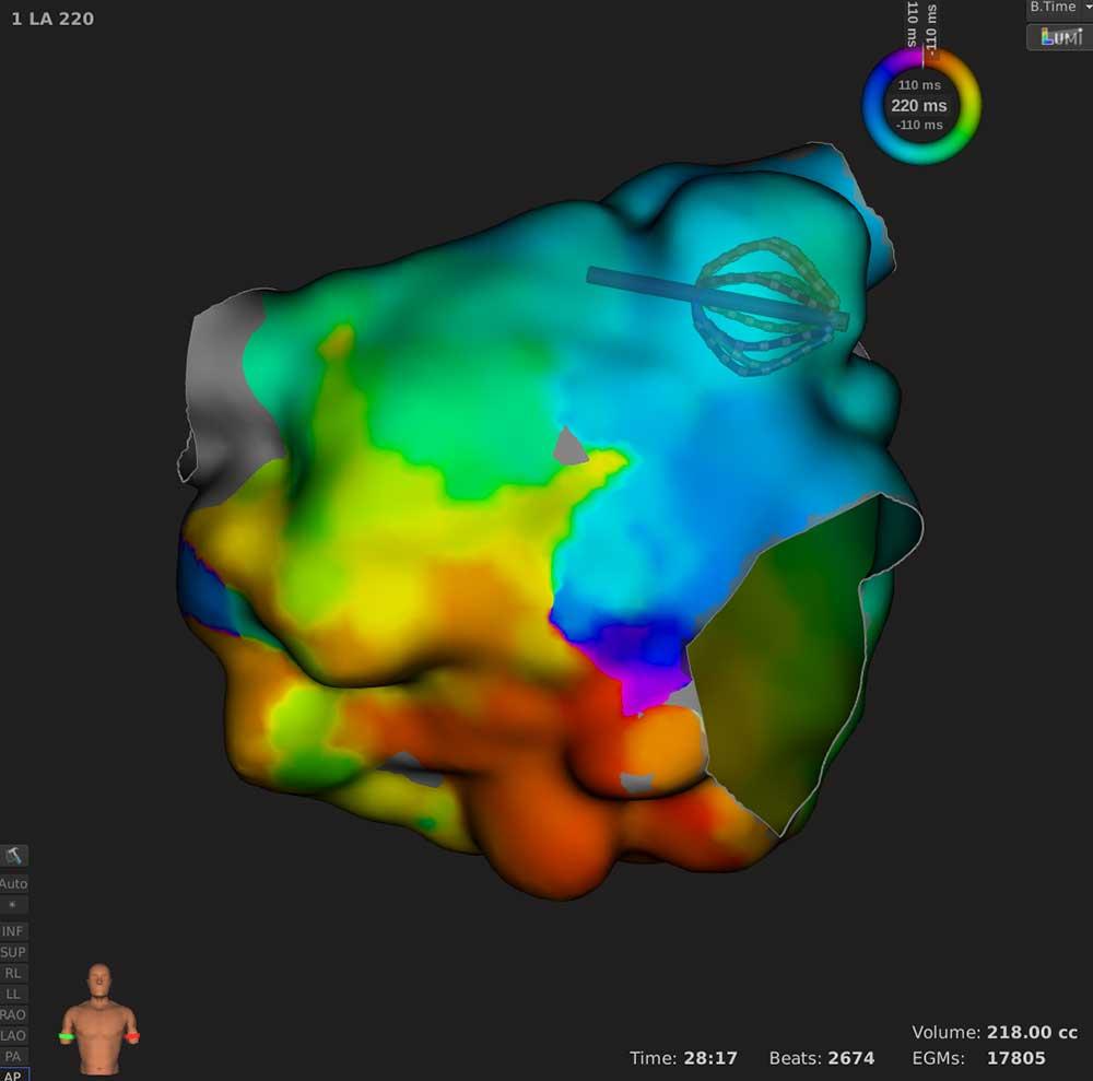Leistungen 3D-Verfahren