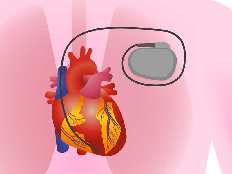 KC Leistungen Herzschrittmacher