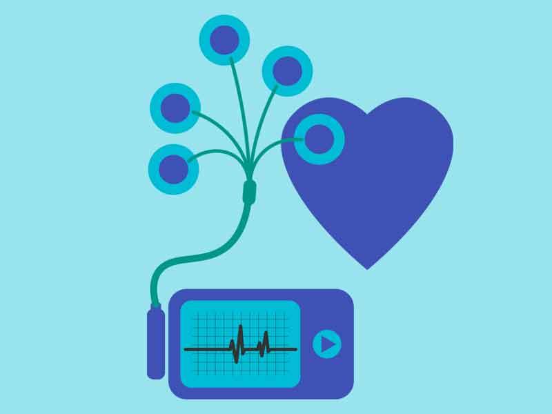 KC Leistungen Langzeit-EKG
